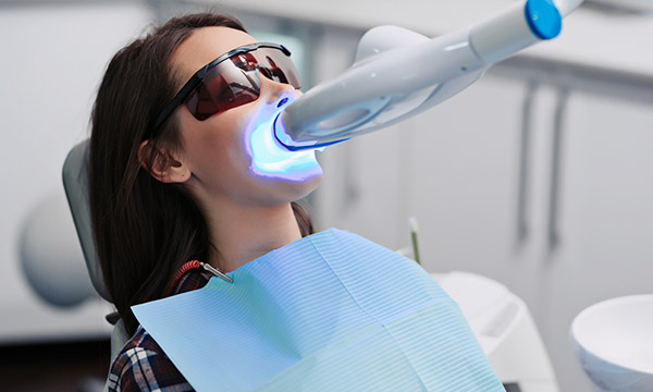 Professional Teeth Whitening in Baulkham Hills
