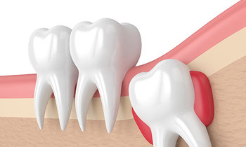 Wisdom Teeth Extraction Services in Baulkham Hills